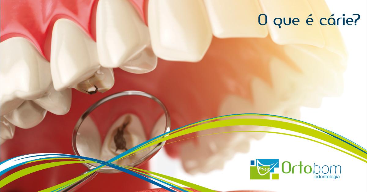 o-que-e-carie-blog-ortobom-odontologia-curitiba-franquia-dentista