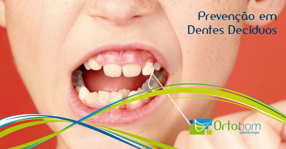 prevencao-dentes-deciduos-blog-ortobom-odontologia-curitiba-franquia-dentista